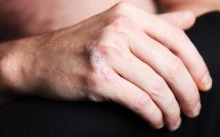 Симптомы и лечение псориаза на руках