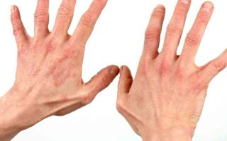 Терапия дерматита у детей и взрослых на руках