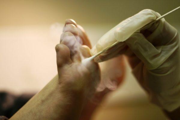Удаление бородавок жидким азотом