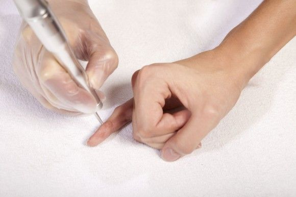 Методы выведения бородавок у ребенка на пальцах