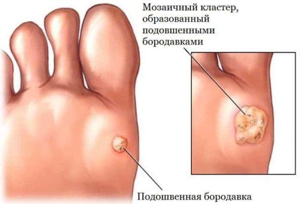 Методы удаления подошвенных бородавок у детей