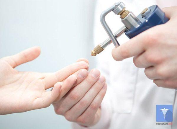 Методы лечения околоногтевой бородавки
