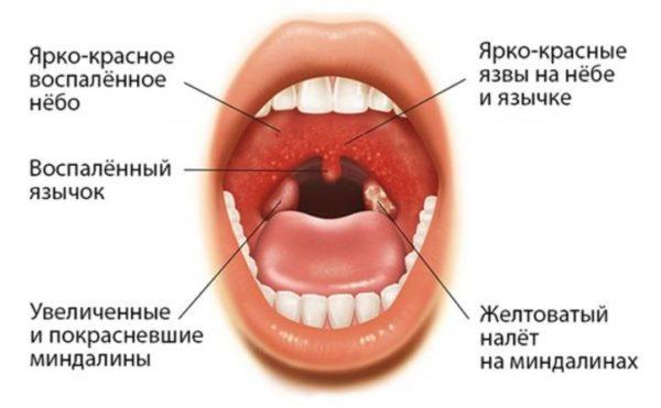 Герпетическая ангина при вирусе Коксаки