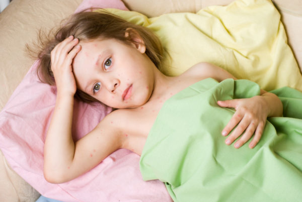 Вирус Коксаки у ребенка
