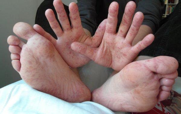 Основнаясимптоматика вируса Коксаки