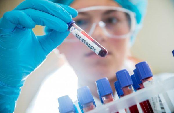 Анализ крови на антитела к ветрянке