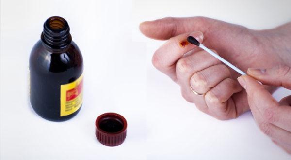 Можно ли прижигать папилломы йодом: лечение и удаление