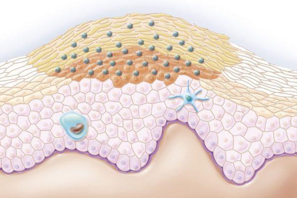 Гигантская кондилома Бушке-Левенштейна: проявления и терапия опасной опухоли