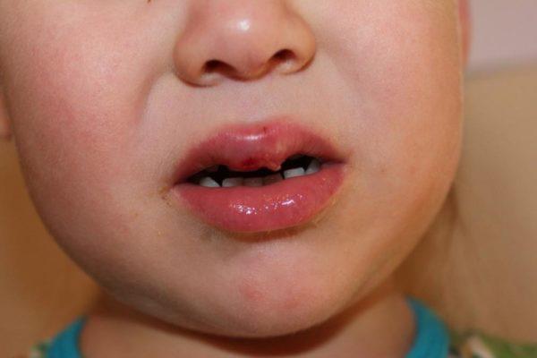 Фото герпеса на губе у ребенка 2 года