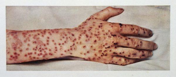 Черная (или натуральная) оспа – заболевание прошлого