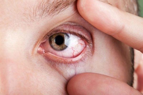 Инфицирование роговицы глаза
