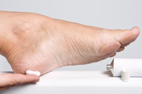 Лечение шпицы на ноге