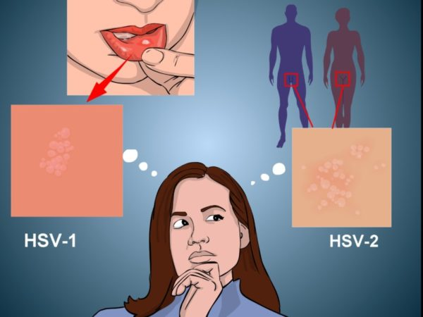 Вирус простого герпеса 1 и 2 типа