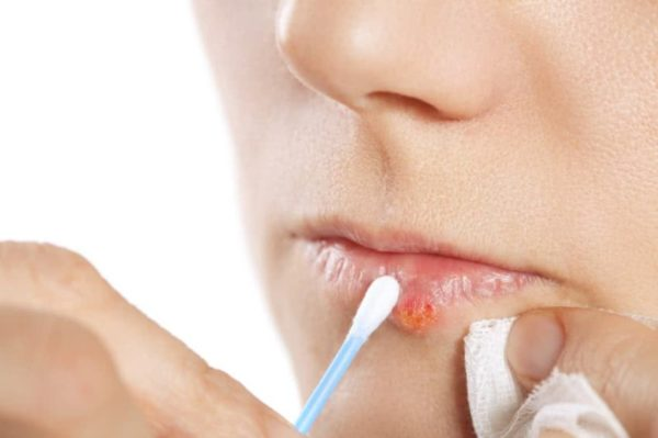 Эффективна ли тетрациклиновая мазь для лечения вируса герпеса на губах