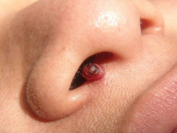 Папиллома в носу