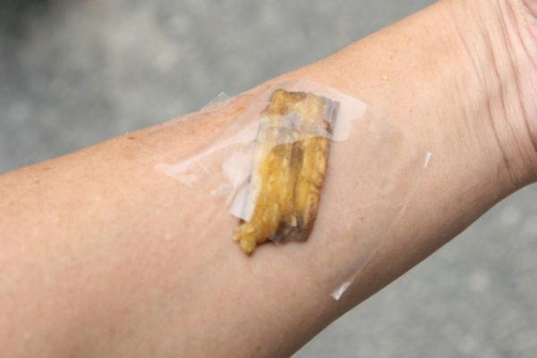 Лечение папиллом кожурой от банана
