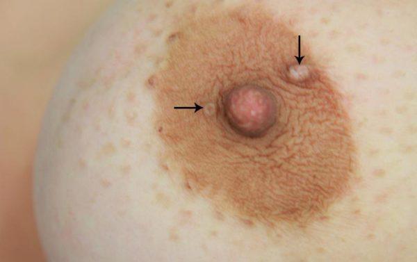 Папиллома на соске: симптомы, риски онкологических заболеваний ...