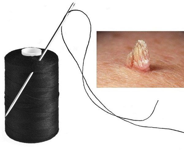 Можно ли папиллому перевязать ниткой: как правильно удалить в ...