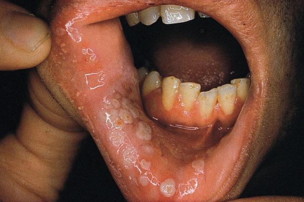 Герпес при ВИЧ
