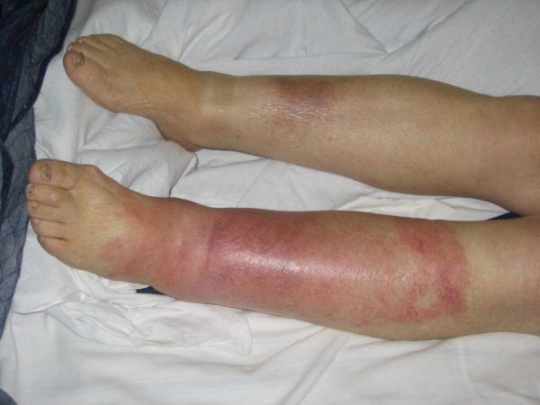 Мазь от рожистого воспаления ноги: чем лучше мазать, как наносить