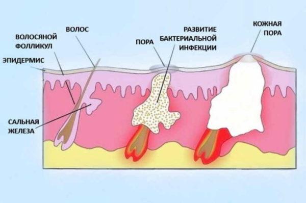 Стадии созревания фурункула