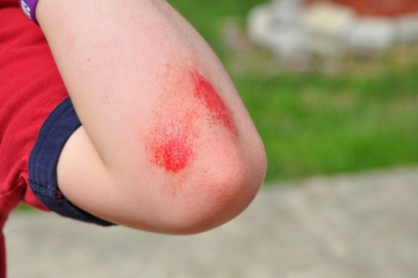 Травмирование кожи - причина атером