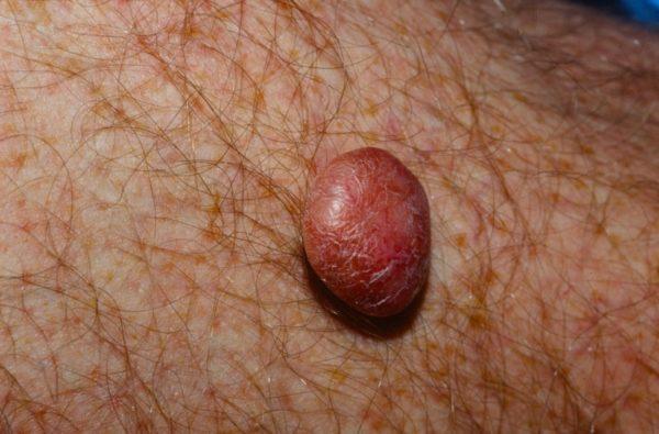 Дерматофиброма – внутрикожная опухоль