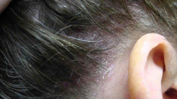 Демодекоз волосистой части головы