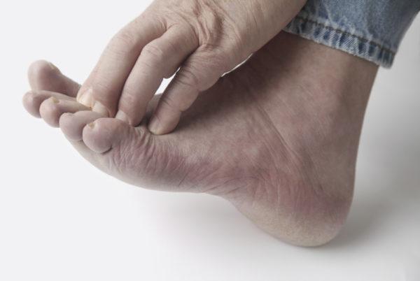 Чешется промеж пальцев на ногах