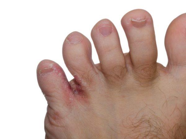 Развитие грибка между пальцами ног