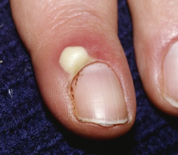 Панариций на пальце