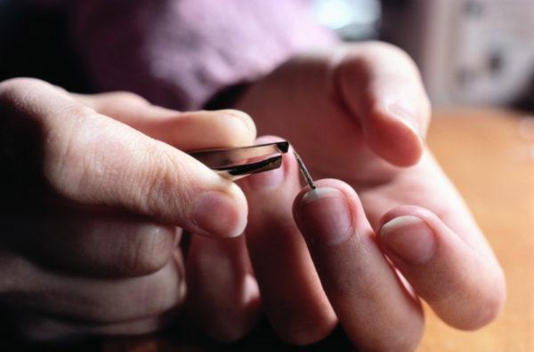 Заноза на пальце