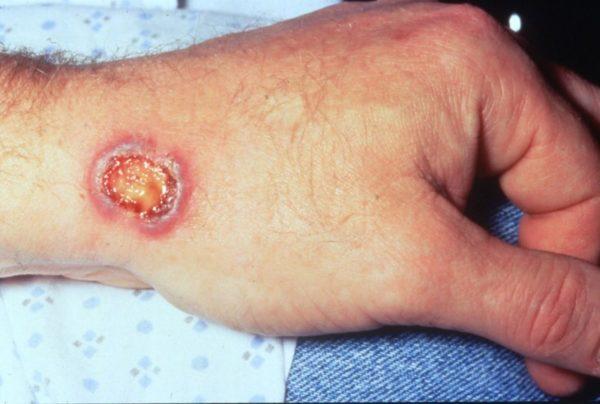 Гранулематоз Вегенера