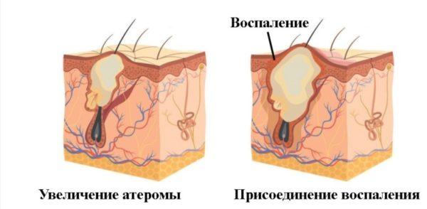 Воспаление атеромы