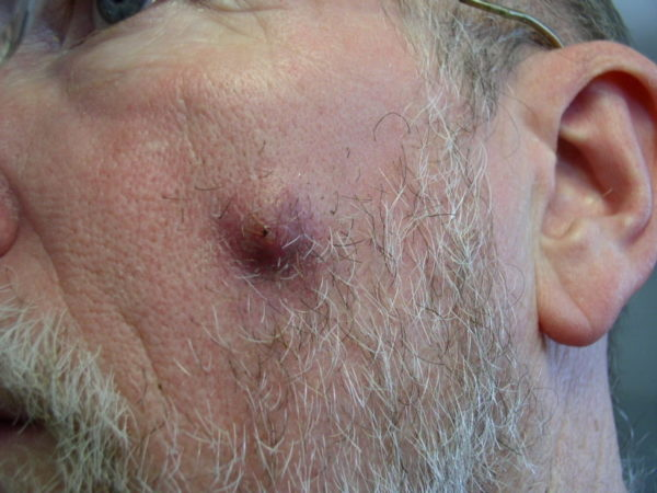 Фурункул на лице