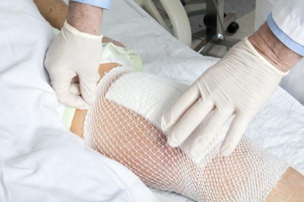 Фиксация салфетки на ноге