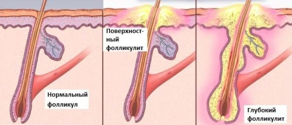 Виды фоликуллита