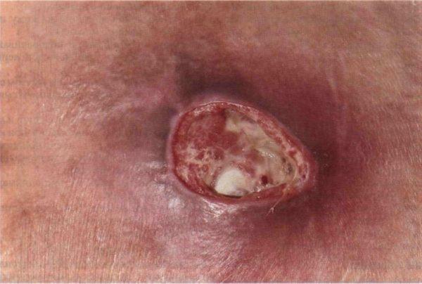 Абсцедирующая пиодермия