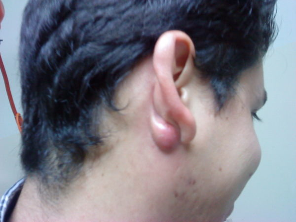 Атерома за ухом: что такое, как удалить, к какому врачу обратиться