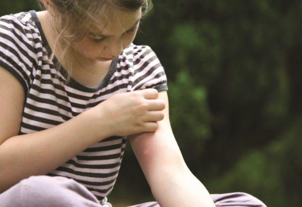 Зуд кожи после укуса насекомого