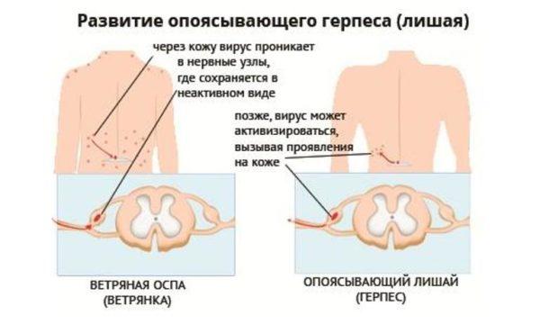 Код опоясывающего герпеса по МКБ-10