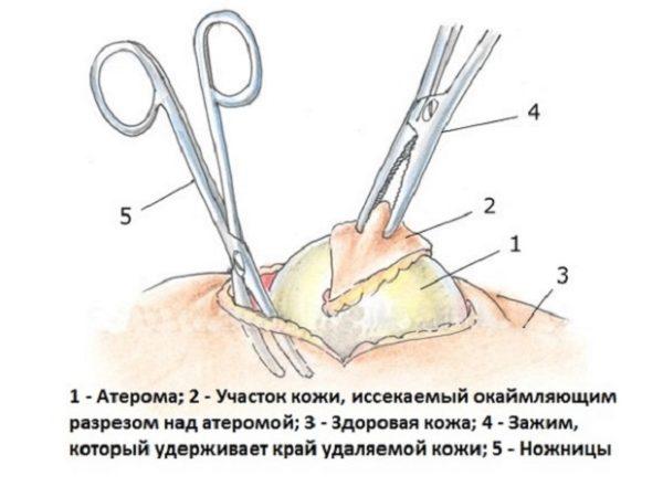 Удаление атеромы хирургическим путем