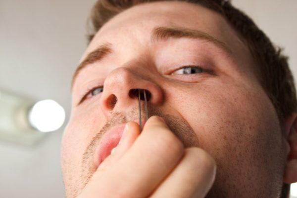 Удаление волос из ноздрей механическим путем