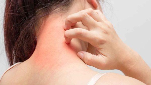 чесотка от нервов симптомы