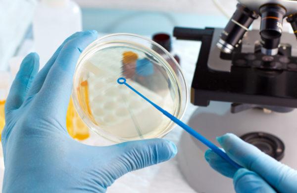 Микробиологическое исследование выделений