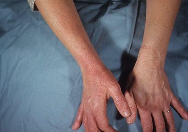 Рожистое воспаление руки 2