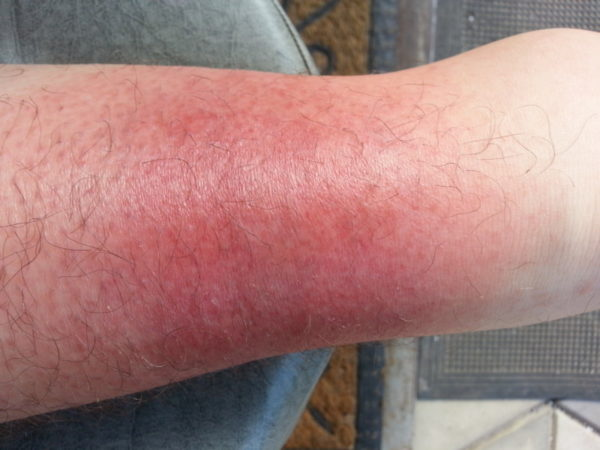 Рожистое воспаление ноги: заразно или нет, как передается инфекция