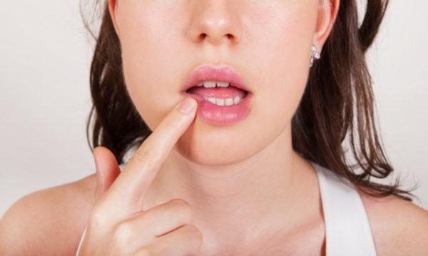 Появление герпеса на губе