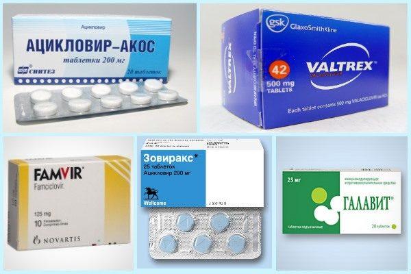 Таблетки от герпеса