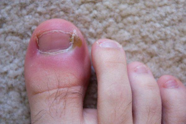 Панариций на ноге